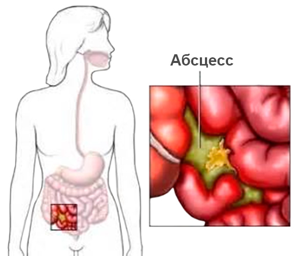 Актиномикоз проявляется формированием многочисленных абсцессов и свищей