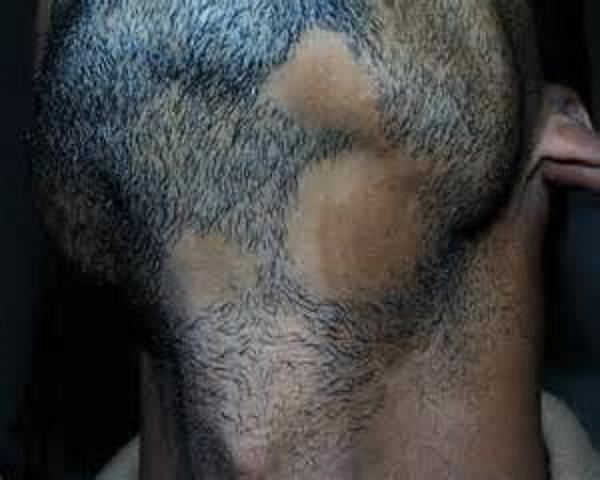 Восстановление волос коломна