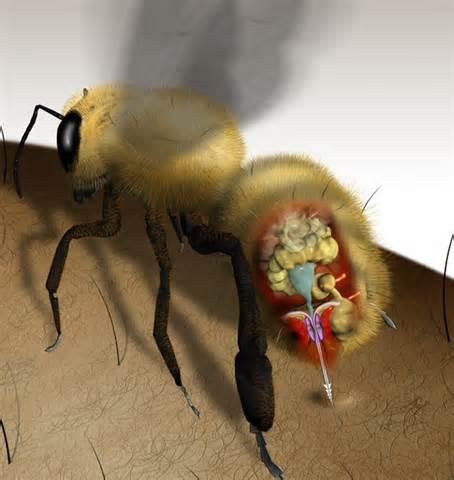 Большинство укусов насекомых довольно безвредные