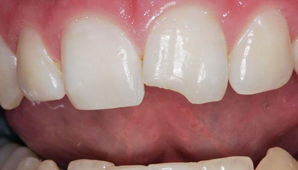 Травма зуба может привести к  перелому зубной эмали