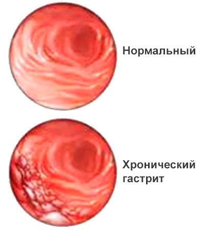 Хронический гастрит тип а симптомы