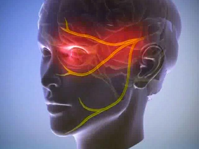 Пучковая (кластерная) головная боль