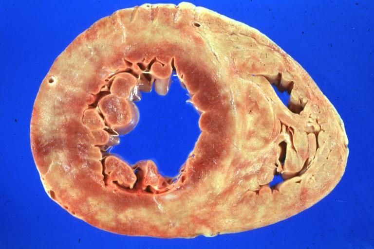 80% больных СД имеют сердечные паталогии