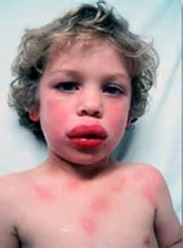 пищевая аллергия от глистов
