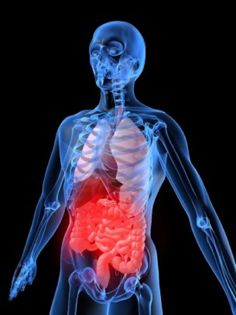 Кровотечение желудочно-кишечное фото
