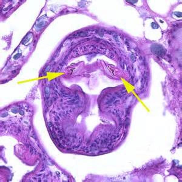 Заболевание возникает вследствие поражения ленточными гельминтами рода Echinococcus