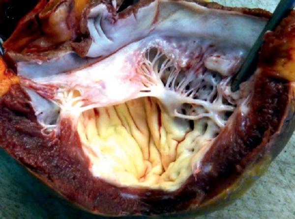 Эндокардиальный фиброэластоз