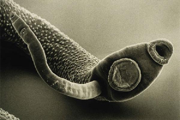 от глистов и паразитов у человека