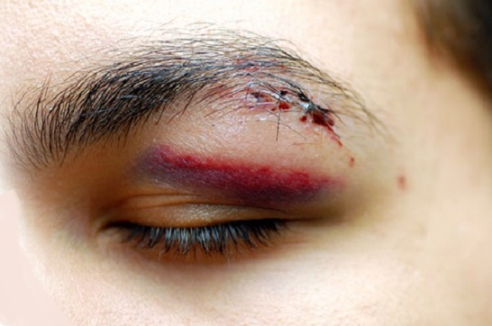 После травмы в глазу развивается реактивный травматический иридоциклит
