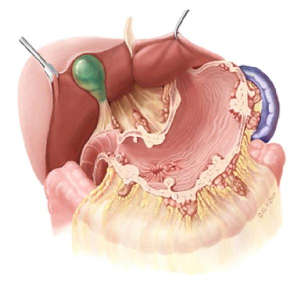 Рак желудка может развиться на почве хронического гастрита, хронической язвы желудка и полипов желудка