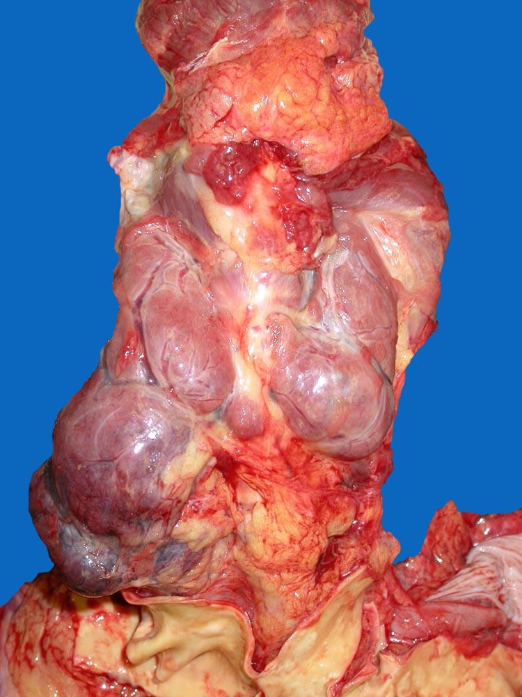 Чаще узлы в щитовидной железе обнаруживают с помощью УЗИ