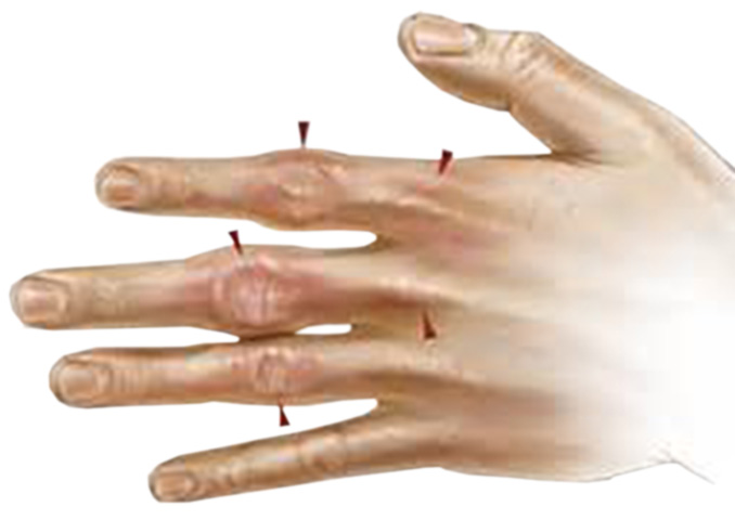 Гемахроматоз суставы реабилитация после вывиха локтевого сустава