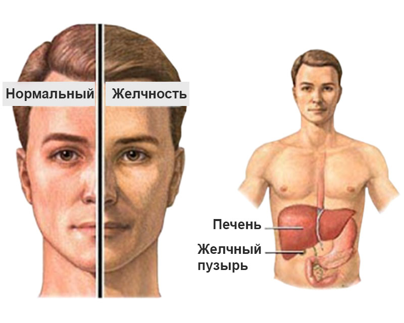 Синдром Капграса