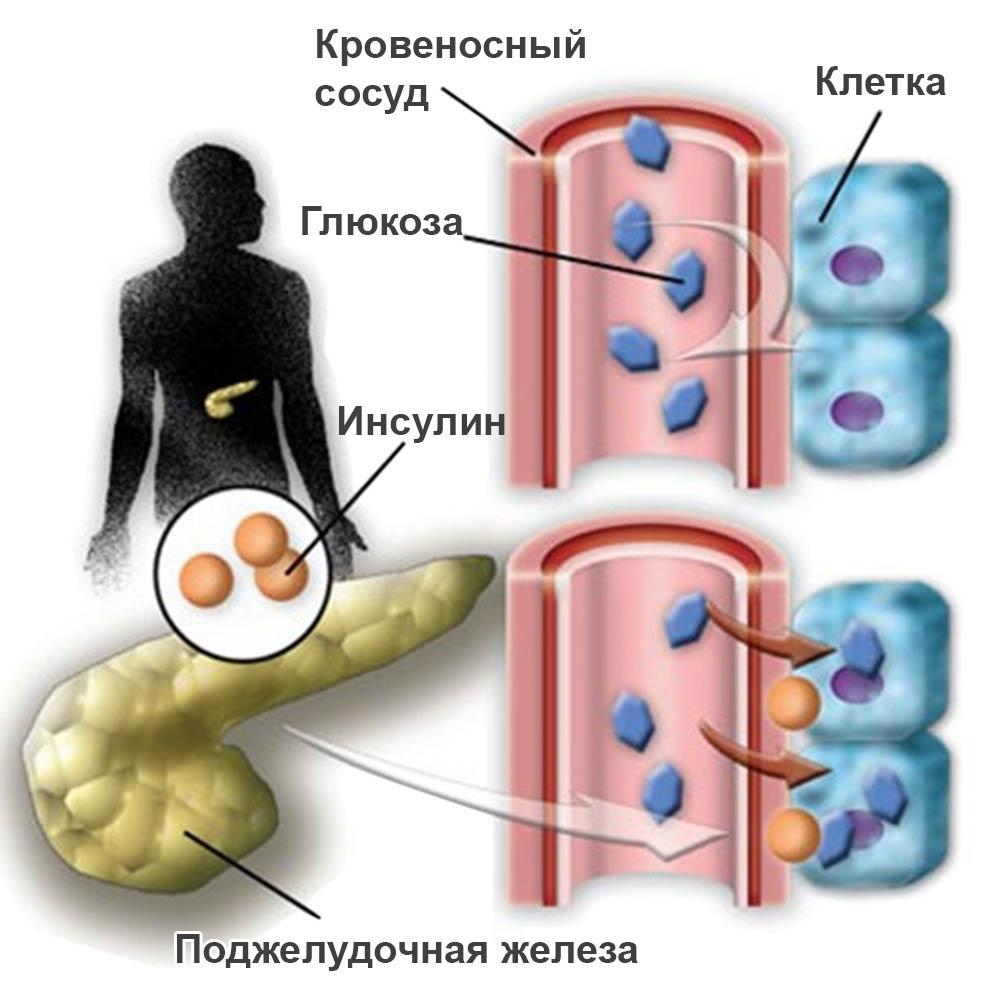 несахарный диабет причины и лечение