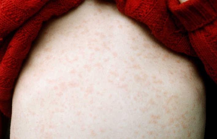 Диагностика кори обычно основана на характерной сыпи заболевания