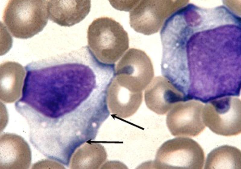 Возбудитель инфекционного мононуклеоза еще окончательно неизвестный