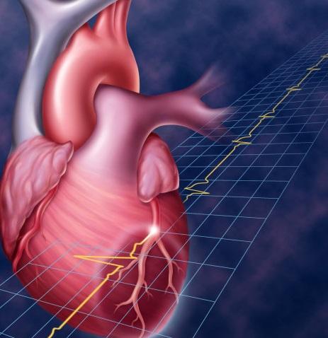Инфаркт миокарда — Википедия