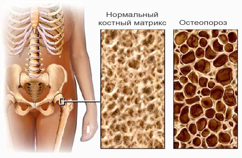 Распознав остеопороз, мы оберегаем себя от фатальных переломов