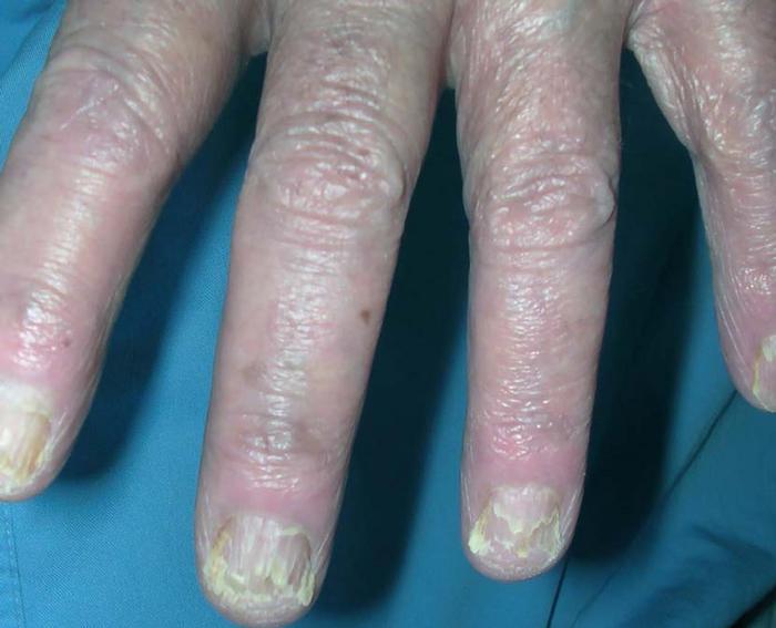 Паранеопластические синдромы - это клинические синдромы, включающие неметастатического системные проявления злокачественного заболевания