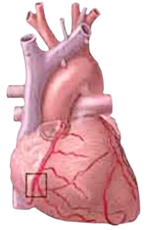 Сердце Легочное фото