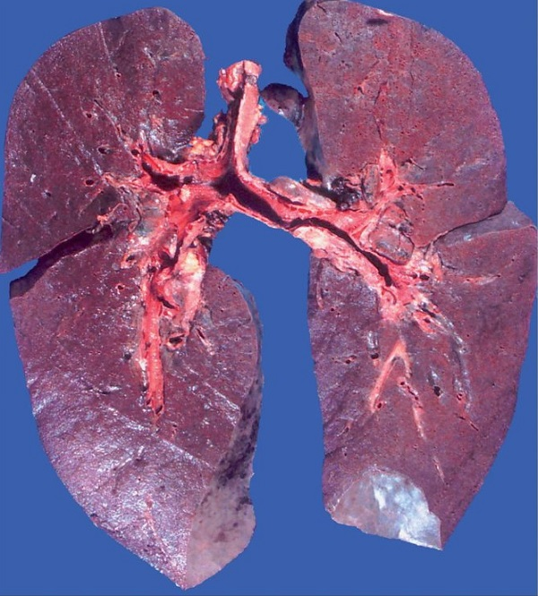 Гемосидероз легких