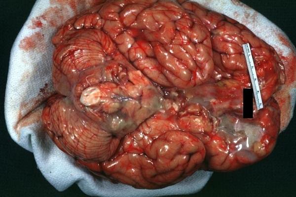 Убедительными симптомами для диагноза являются неврологические симптомы