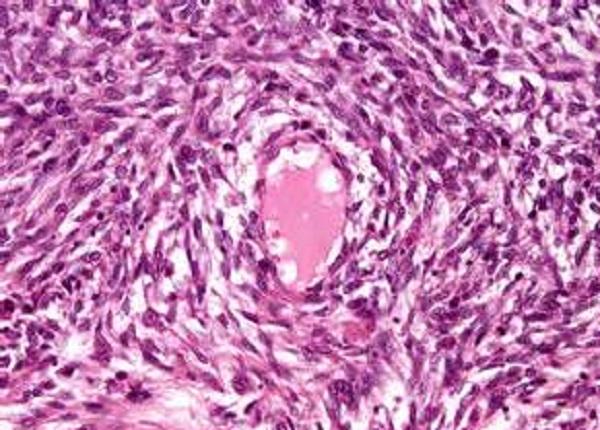 Опухолевая ткань может инфильтрировать весь миометрий