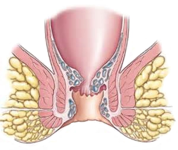 Методы лечения легочного рака