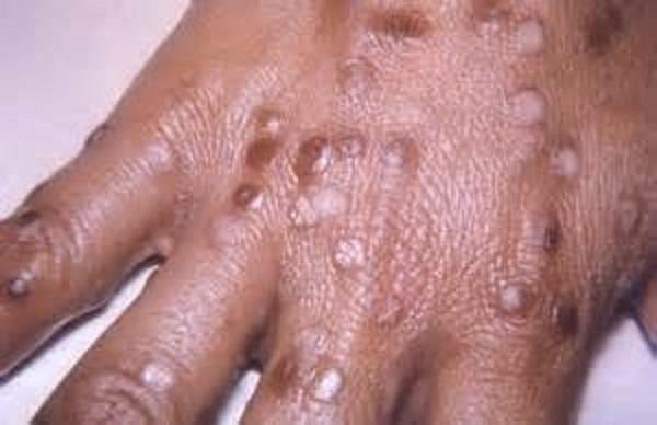 Название вируса - Poxvirus variolae.