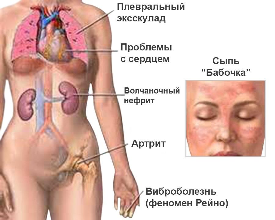 лечение и диагностика паразитов