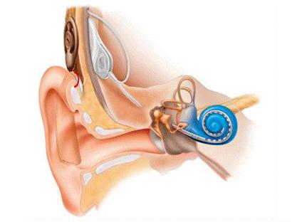 Система кохлеарной имплантации