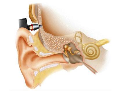 Слуховой аппарат костного проведения с вживляемым титановым имплантом
