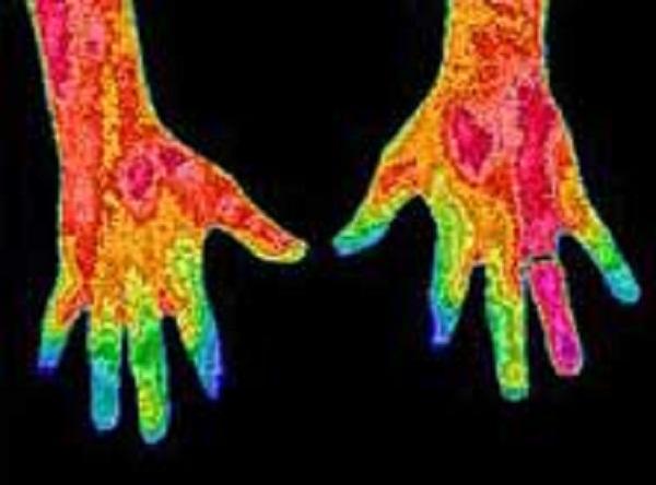 Применение в диагностике тепловизора