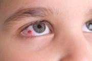 Конъюнктивит - Что делать с красными глазами?