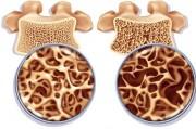20 октября – Всемирный день профилактики остеопоро
