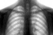 Международный день борьбы с туберкулезом