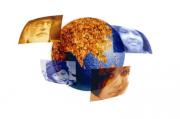 29 октября – Международный День псориаза