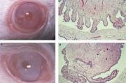 Влияние трансплантации фетальных тканей на серотон