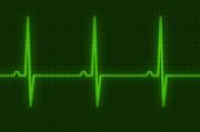 Электрическая стимуляция сердца: современное состо