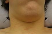 Инфекция как основная причина лимфаденопатии