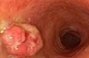 Полипы влагалища и вульвы: диагностика и профилактика