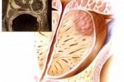 Определение стадии заболевания рака предстательной железы
