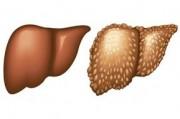 Особенности лечения больных с алкогольными поражениями печени