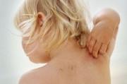 Аллергодерматозы у детей