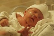 Заболевания новорожденных в  раннем неонатальном периоде