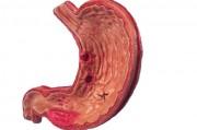 Частота встречаемости рака желудка
