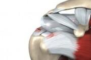 Динамика морфологических изменений при дегенеративно-дистрофических поражениях суставов