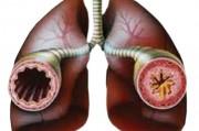 Что такое бронхиальная астма и каковы ее проявлени