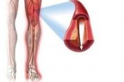 Функциональные особенности венозной гемодинамики нижних  конечностей у женщин
