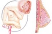 К вопросу о терапевтическом аборте при РМЖ